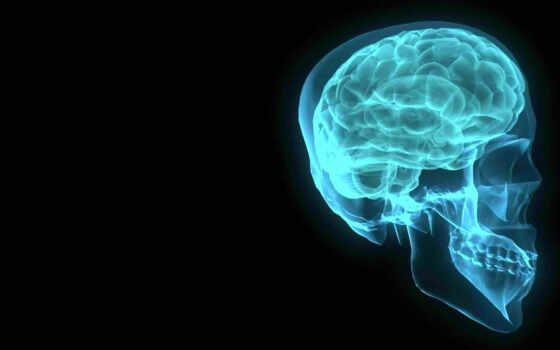 рентген, мозг